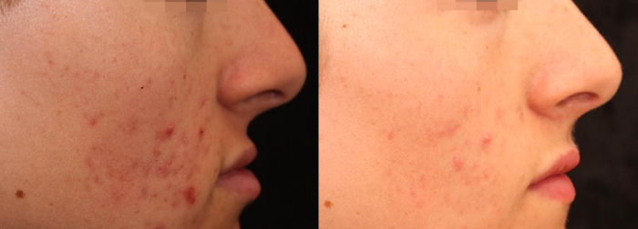 Active acne laser treatment