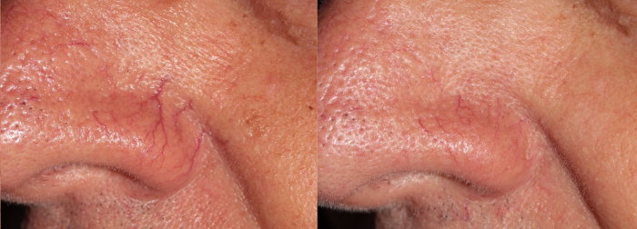 Couperose laser treatment