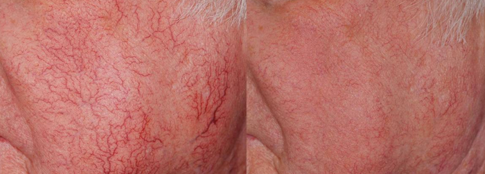 facial erythrosis laser treatment
