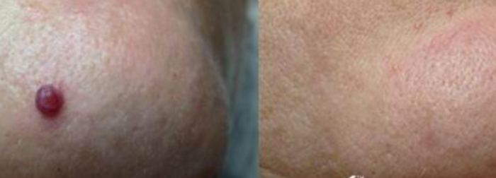 Cherry angioma laser treatment
