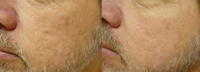 Scars laser treatment