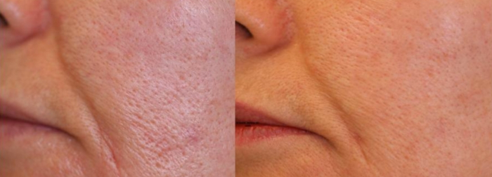 Pores laser treatment