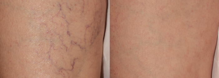 Spider veins laser treatment