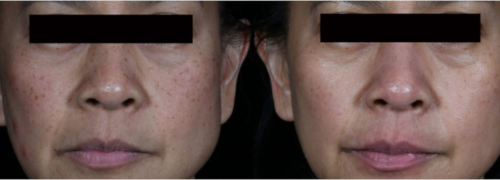 Benign pigmentation spots laser treatment