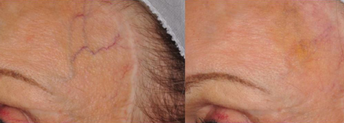 Veins forehead laser treatment