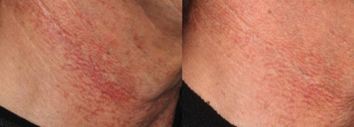 Poikiloderma laser treatment