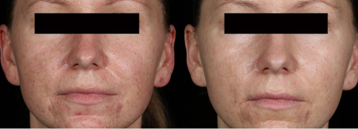 Rosacea laser treatment
