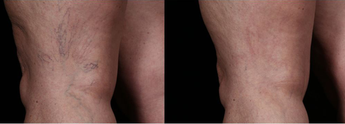 Veins legs laser treatment