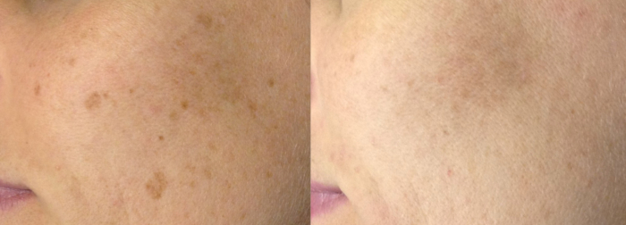 Sun damage laser treatment